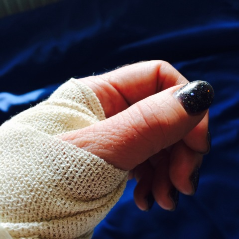 Hand i bandage med svartglittrigt nagellack på tummen.